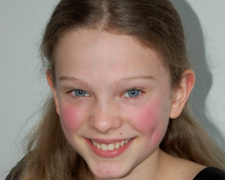 Wunnerlich Antonia, 4de prijs, Middelbare graad